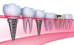 Implantes dentales en Majadahonda