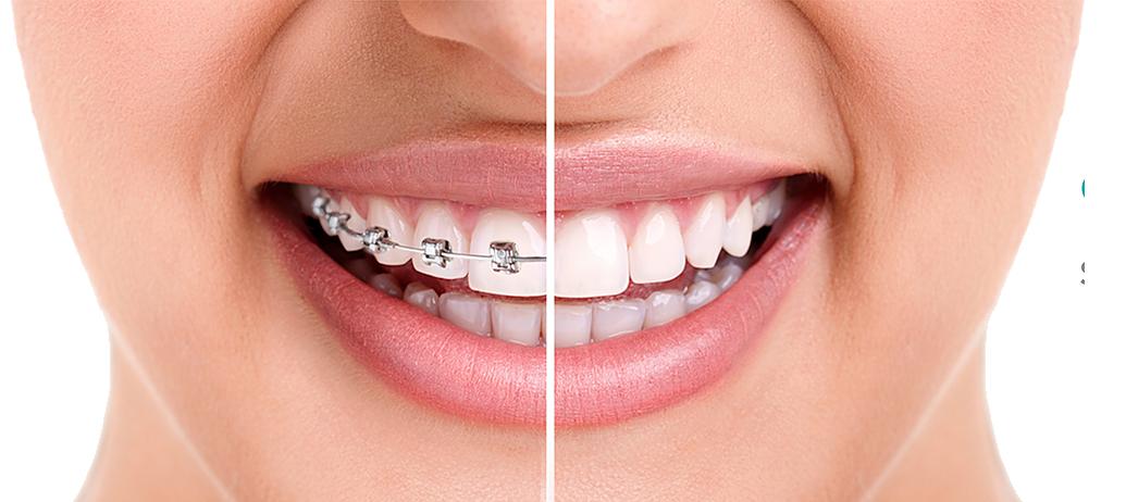 ¿Qué tipo de ortodoncia es mejor para mí?