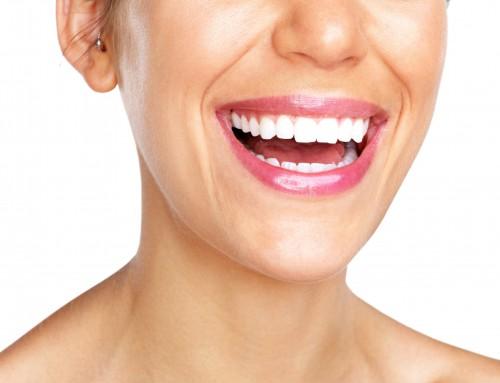 Qué son las carillas dentales y por qué pueden venirte bien