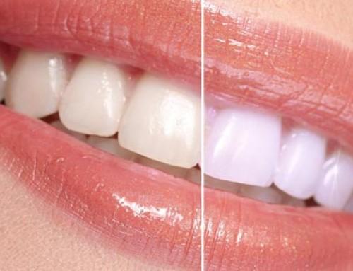 ¿Cómo se consigue una sonrisa reluciente y unos dientes más blancos?
