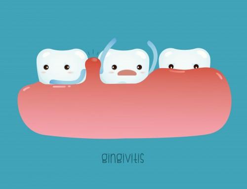 ¿Qué es y cómo puedo prevenir la gingivitis?