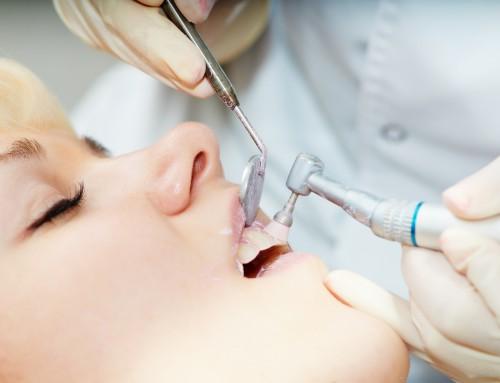 ¿Cómo cuidar de tu sonrisa después de una extracción dental?