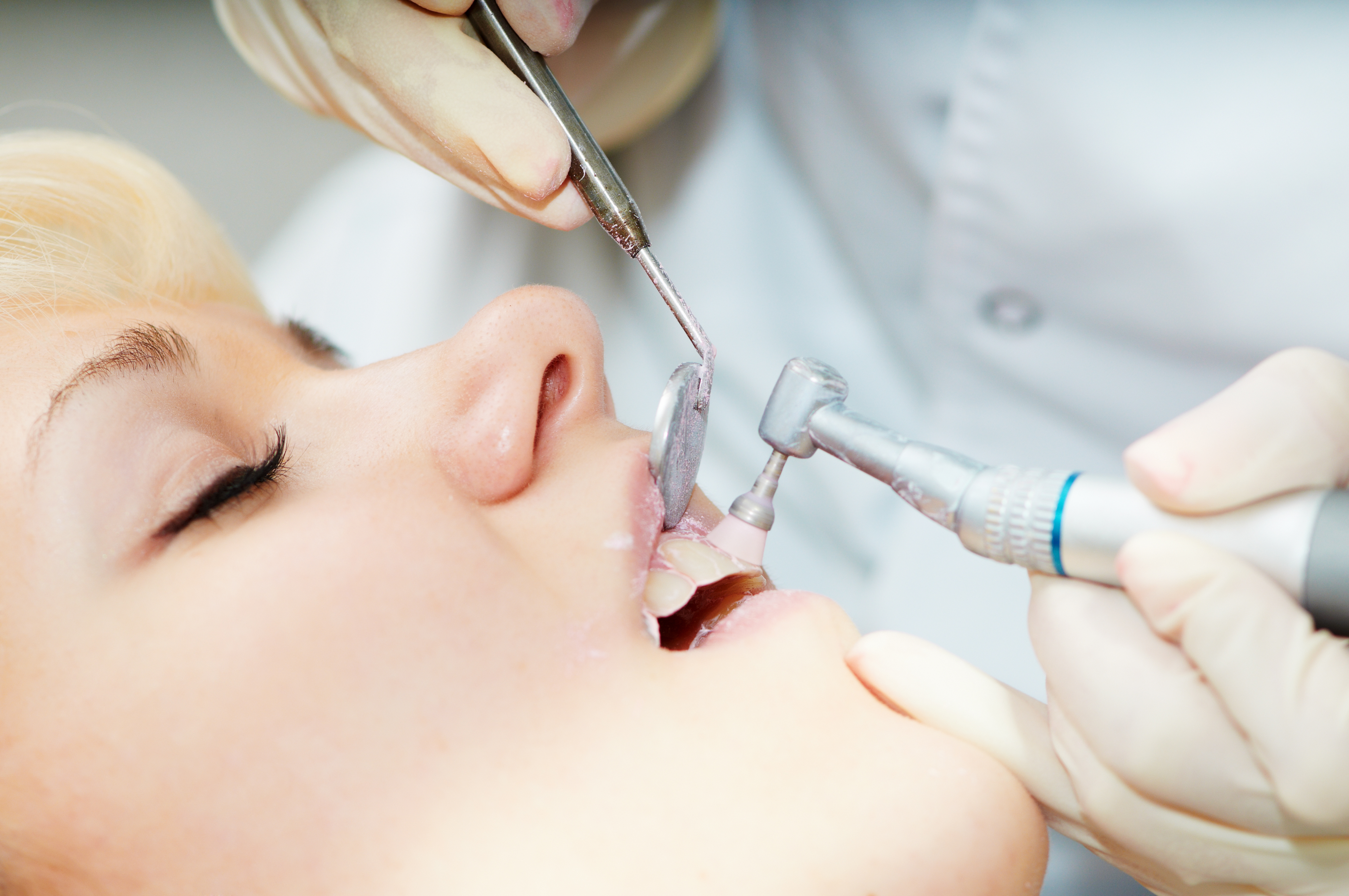 Extracción dental en Majadahonda